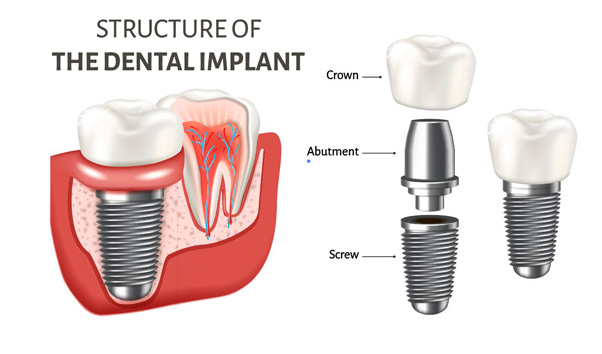 structure of the dental implant
